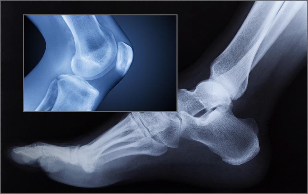 3D-печатные живые ткани смогут лечить артрит