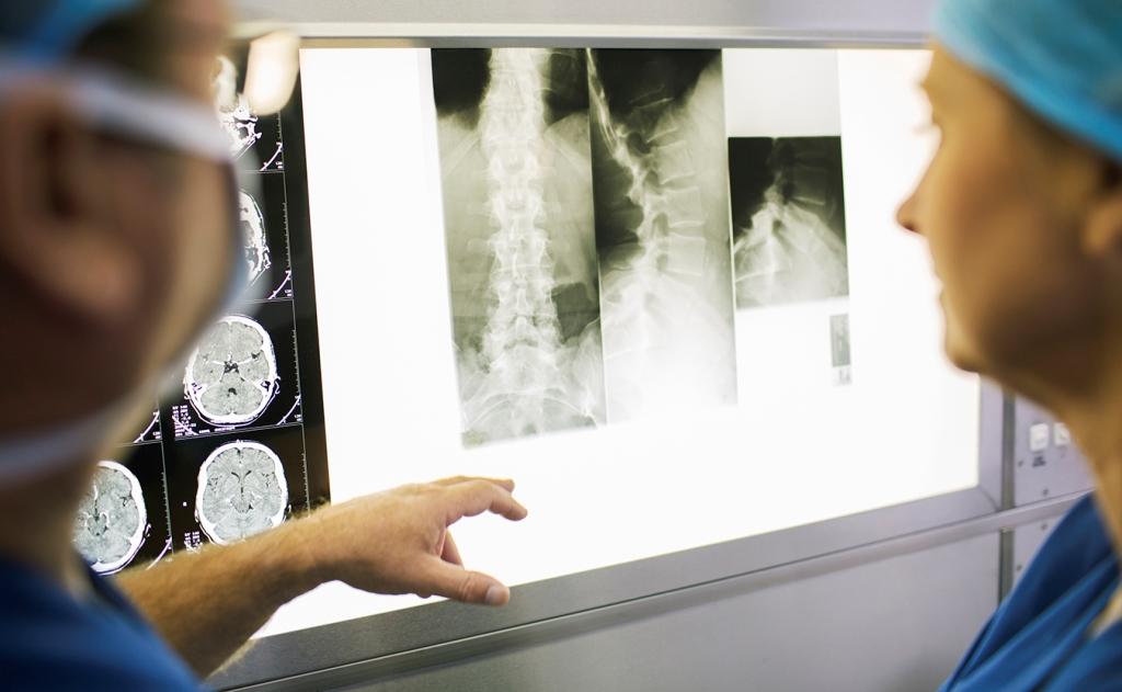 Найден способ лечения повреждений спинного мозга