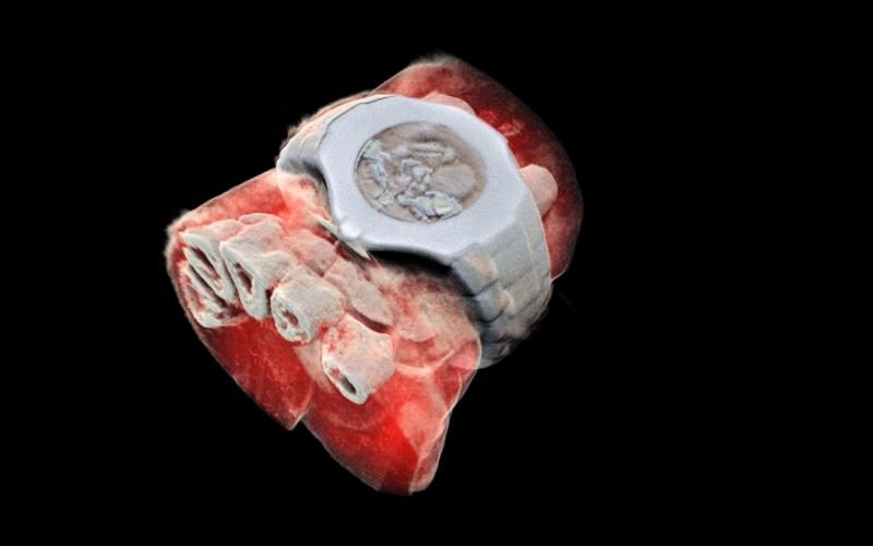 Трехмерное изображение запястья на новом рентгеновском сканере