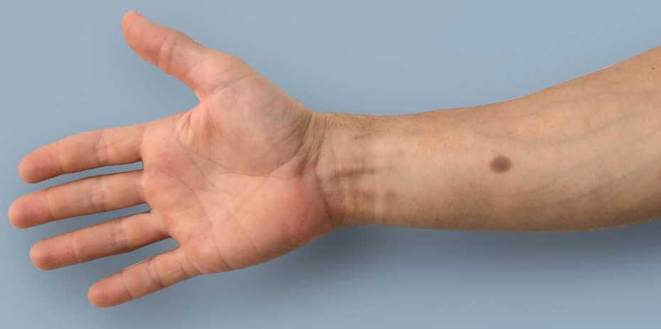 Биомедицинская татуировка